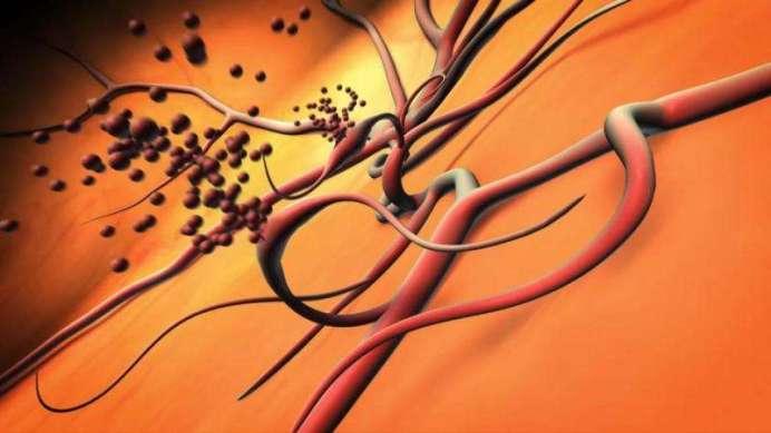 Sanguinamento nei vasi sanguigni anomali nel centro dell'occhio a causa di retinopatia diabetica proliferativa. Credit: National Eye Institute