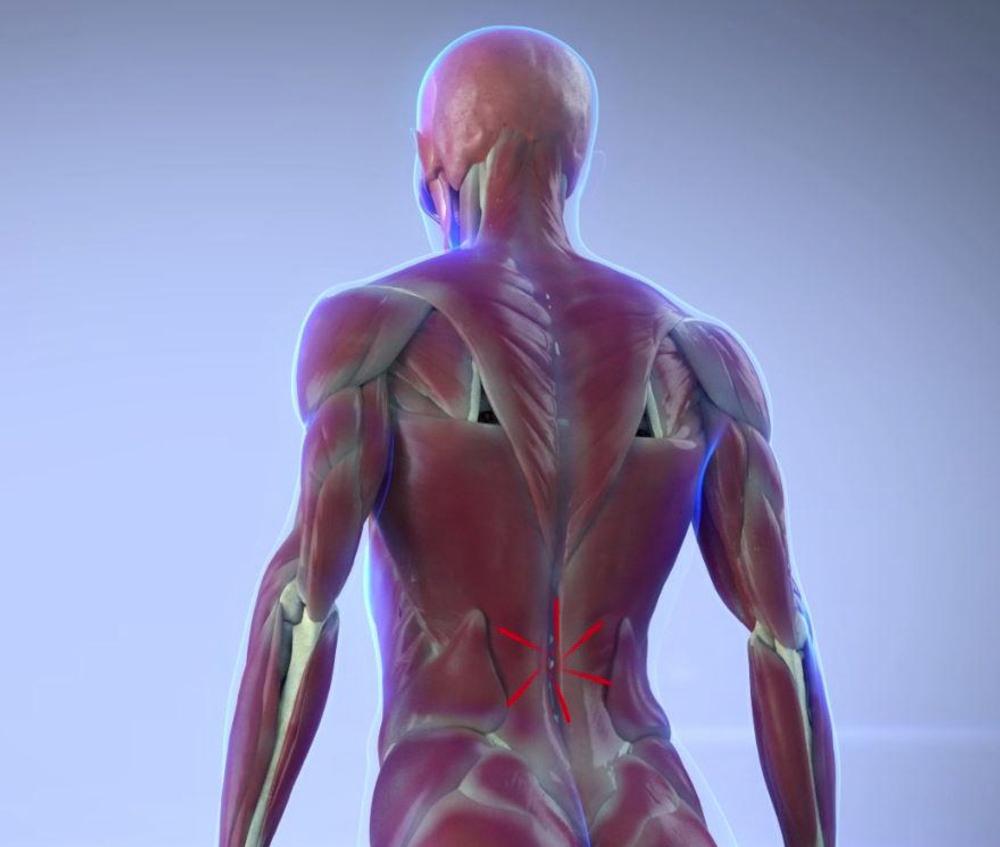 Sollievo dal dolore per lartrite nella parte bassa della schiena, sintomi della lombalgia