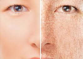 dry skin 1