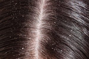 10 Effective Home Remedies For Dandruff
