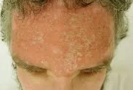 SunburnedScalp naturally