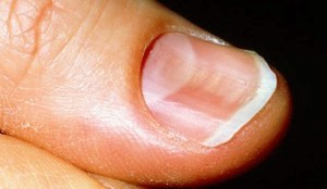 fingernails can indicate your health status