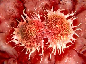 Cellule tumorali in divisione
