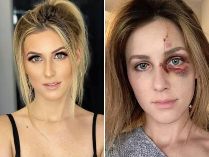 Melissa Gentz prima e dopo violenze. Photo credits: Corriere della Sera