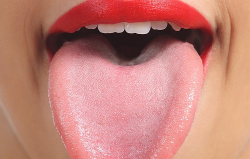 healthy tongue 502