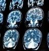 Az pişmiş domuz eti yiyen bir adamın beyninde ve göğsünde yüzlerce tenya olduğu tespit edildi