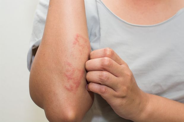Celiac Disease Rash Elbows