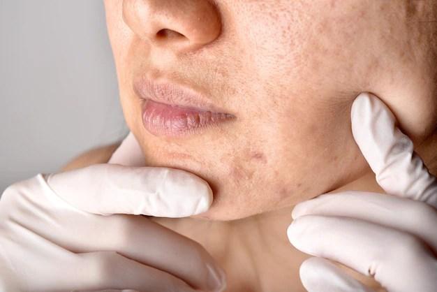 Médico ou dermatologista examina o rosto do paciente. problemas de pele e cicatriz de acne. Foto Premium