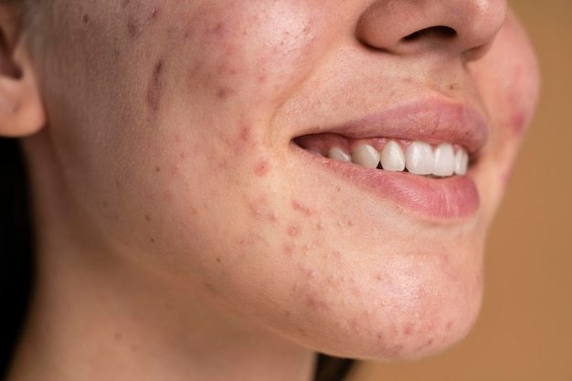 mulher-jovem-confiante-com-um-close-de-acne_23-2148982536 Roacutan remédio que promete acabar com a acne