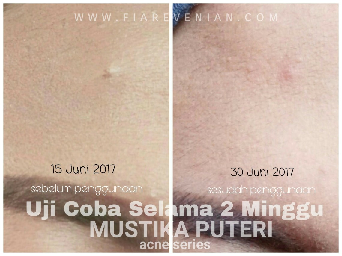 MP Before After