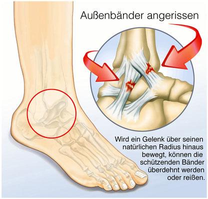Physiotherapie Nach Banderriss Schneller Wieder Fit Schmerzfrei Und Mobil Physiotherapie In Hannover