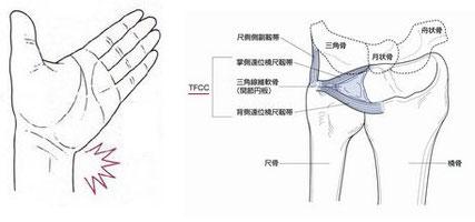 TFCC(三角線維軟骨複合體)損傷 - さぎ山 たなか接骨院