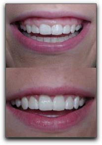 gummy smile surgery
