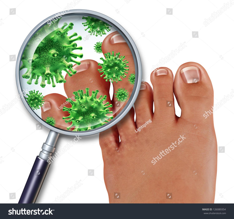 Foot Fungus Disease Close Human Body Stock Illustration