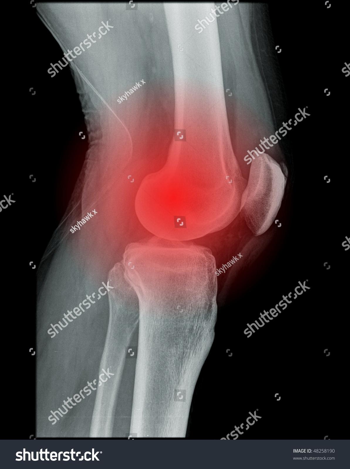 Knee Pain Xray Human Knee Stock Photo