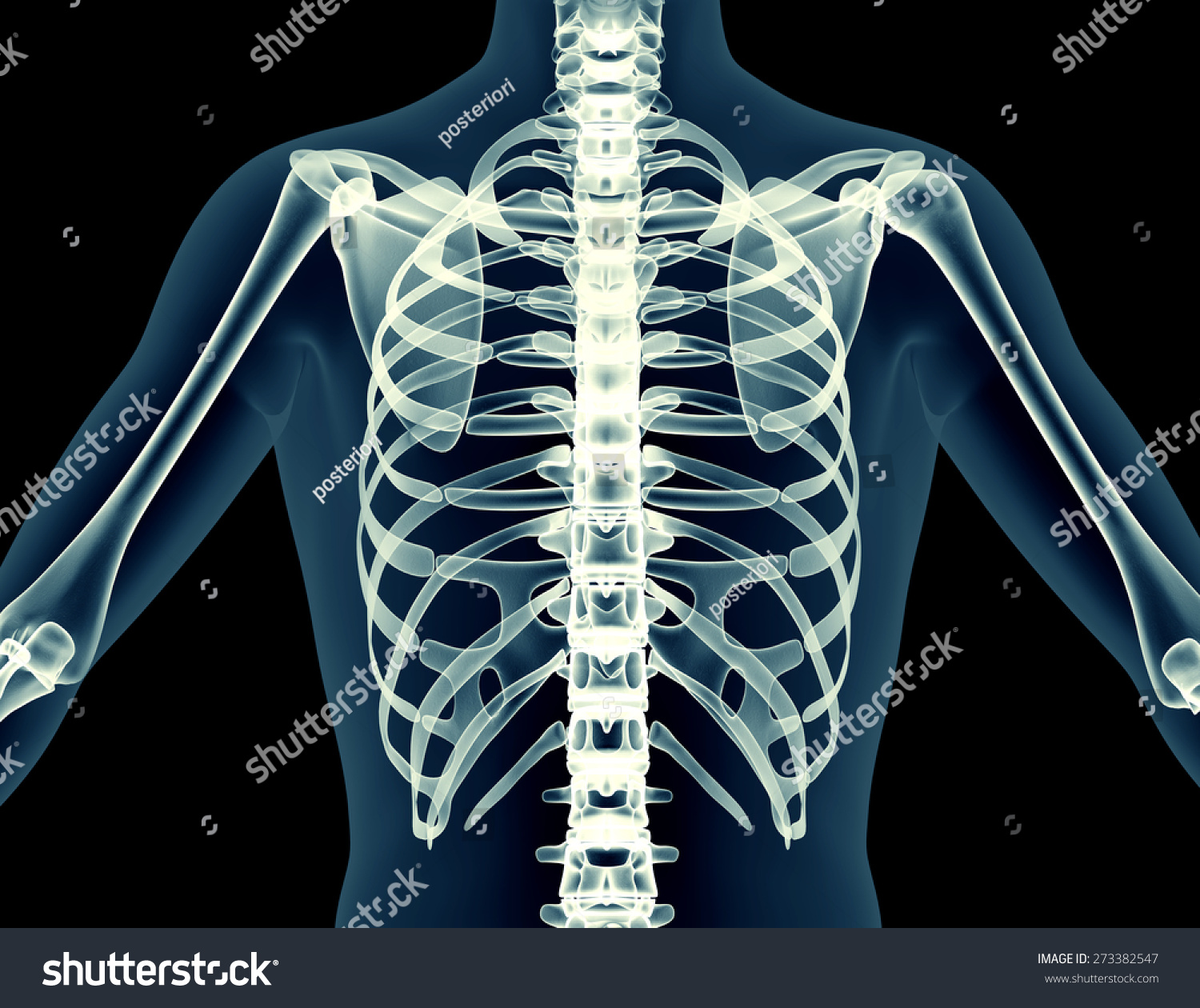 X Ray Human Body Of A Man With Skeleton Isolated On Black