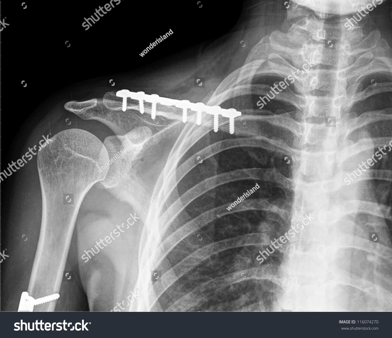 X Ray Collarbone Stock Photo