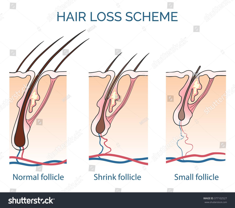 Human Hair Loss Scheme Growth Problem Stock Vector