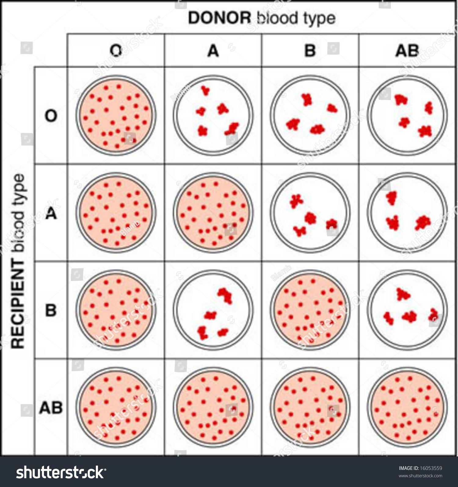 Illustration Showing Blood Crossmatching