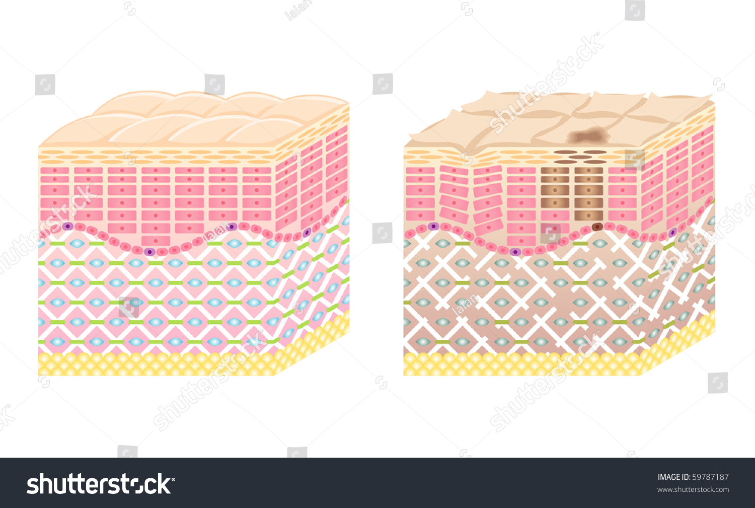Skin Crosssection Stock Vector