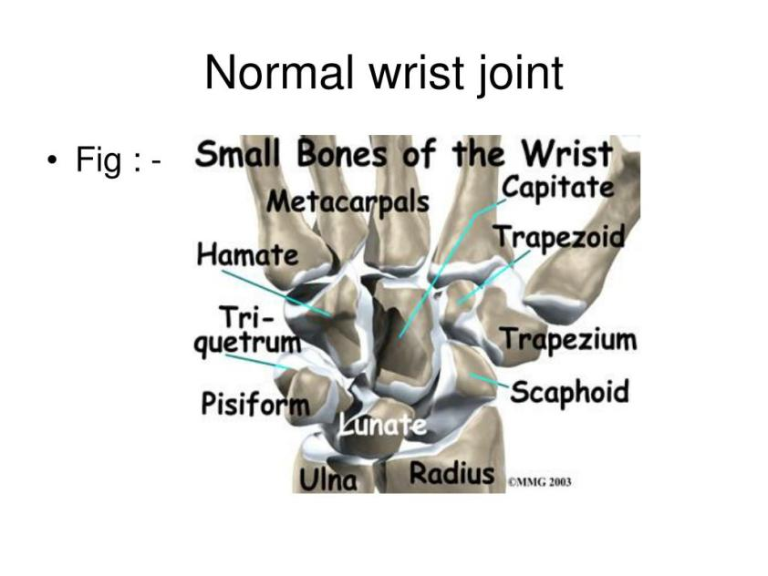 PPT - Normal wrist joint PowerPoint Presentation, free ...
