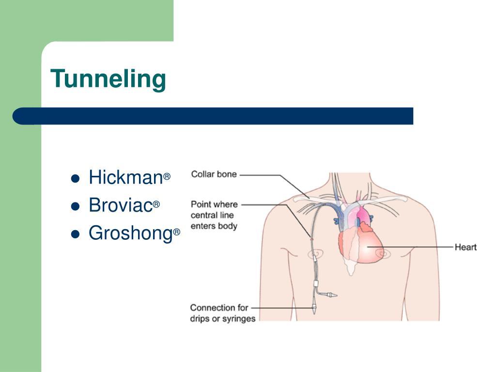 Proximal Distal Picc And Lumen