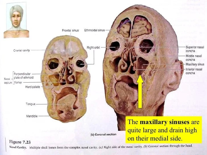 Are Head Sinus There Behind Cavities