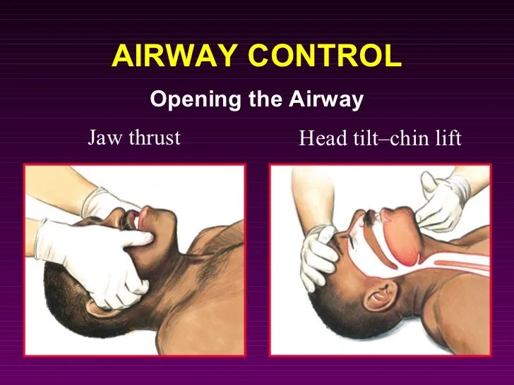 Thrust Tilt Jaw Lift Chin Head