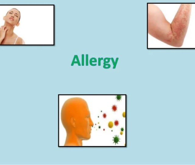Definition Allergies Also Known As Allergic Diseases Are A Number Of Circumstances Caused By