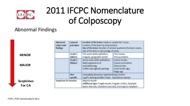 Acetowhite Changes Colposcopy 12 3 And 7 O Clock