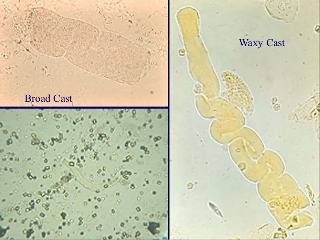 Polarized Fatty Cast Urine