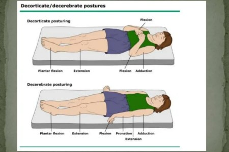 Approach to the comatose patient 47