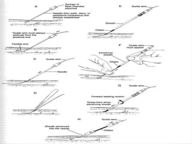 Central venous catheterization