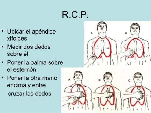 Resultado de imagen de rcp