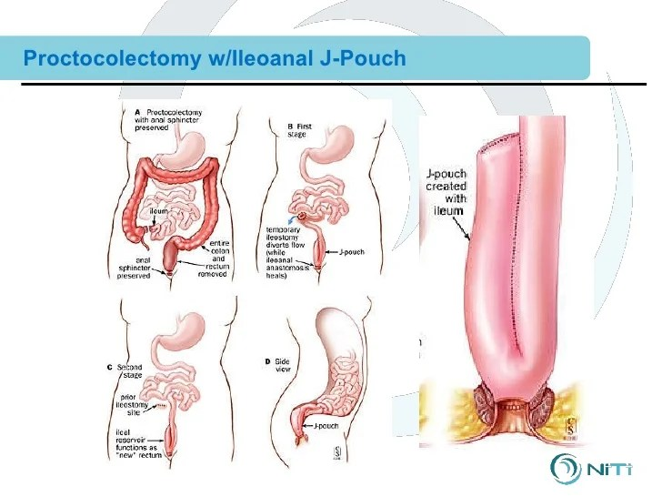 Anatomy Of J Pouch Procedure