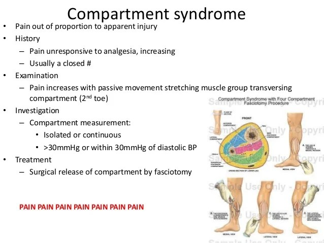 Anterior Treatment Syndrome Compartment