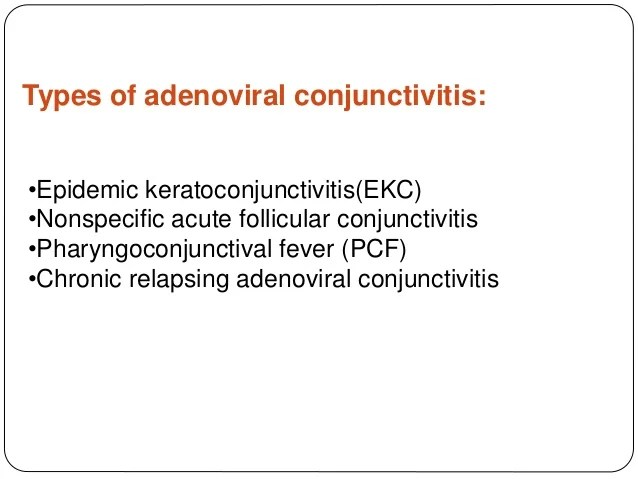 And Conjunctival Chemosis Follicular Conjunctivitis