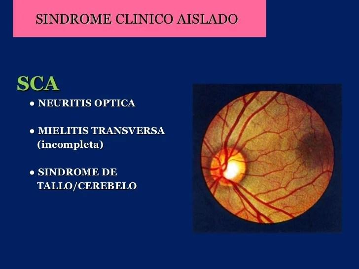 Resultado de imagen de foto Síndrome Clínico Aislado