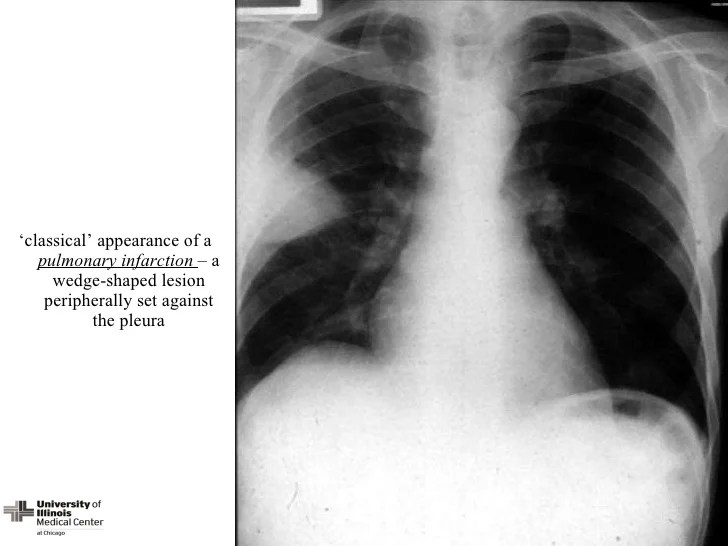 Image result for pulmonary infarction cxr pulmonary embolism