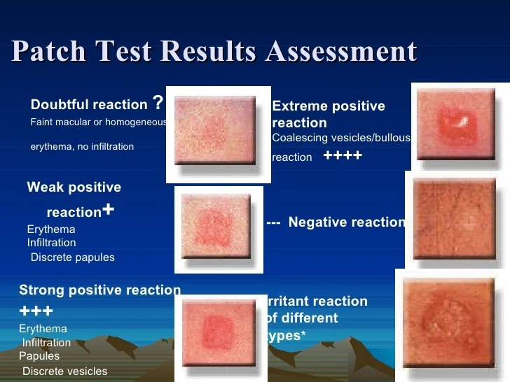 Image Result For Patch Allergy Test
