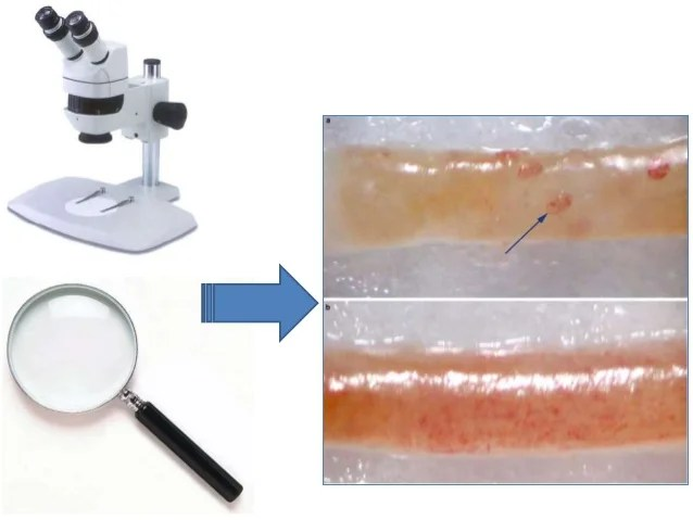 Core Needle Biopsy Recovery
