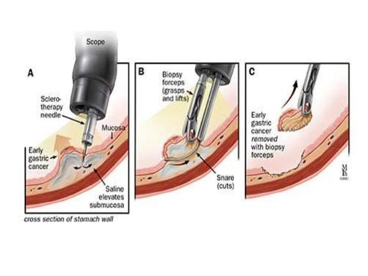 Cyst Removal Surgery Procedure