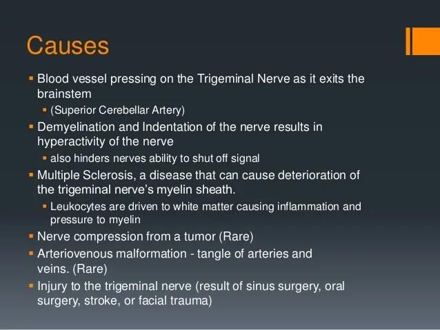 Demyelination Trigeminal Neuralgia
