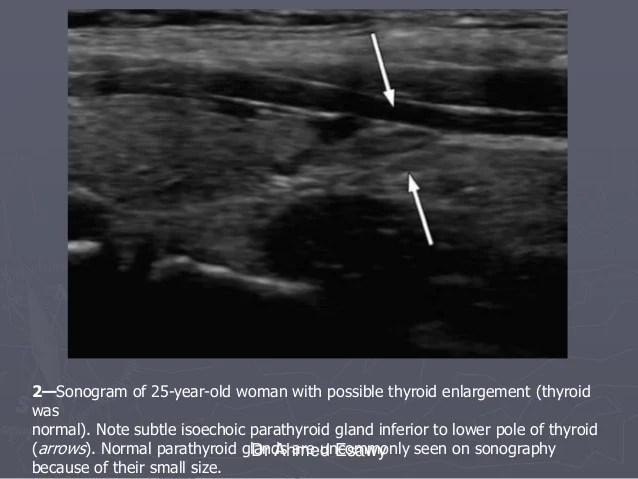 Parathyroid Tissue Slide