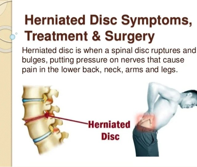 Herniated Disc Symptoms Treatment Surgery Herniated Disc Is When A Spinal Disc Ruptures And