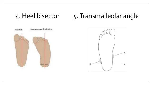 Normal Foot Angle Thigh