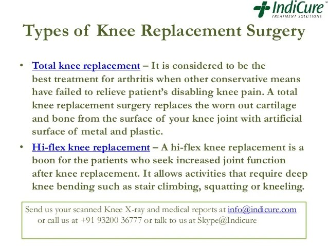 cost of knee replacement