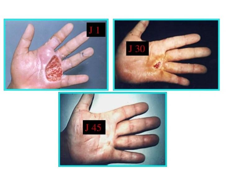 résultat d'image pour La. Infection