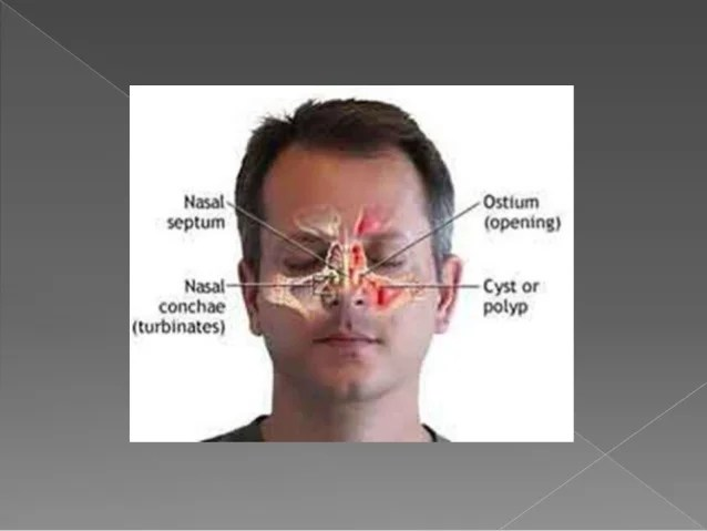Maxillary sinus new