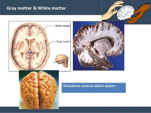 Gray Matter Deterioration White